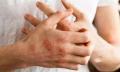 Numulární dermatitida