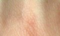 Diagnostika pokožky