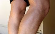 Jak na metličkové žilky na nohách