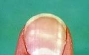 Domácí triky proti třepení nehtů