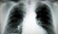 Chronická bronchitida
