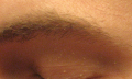 Bílé skvrny naobličeji