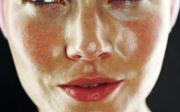 Červené zarudlé fleky naobličeji
