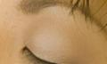 Svědění očních víček