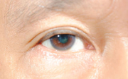 Dieta nazdravé oči
